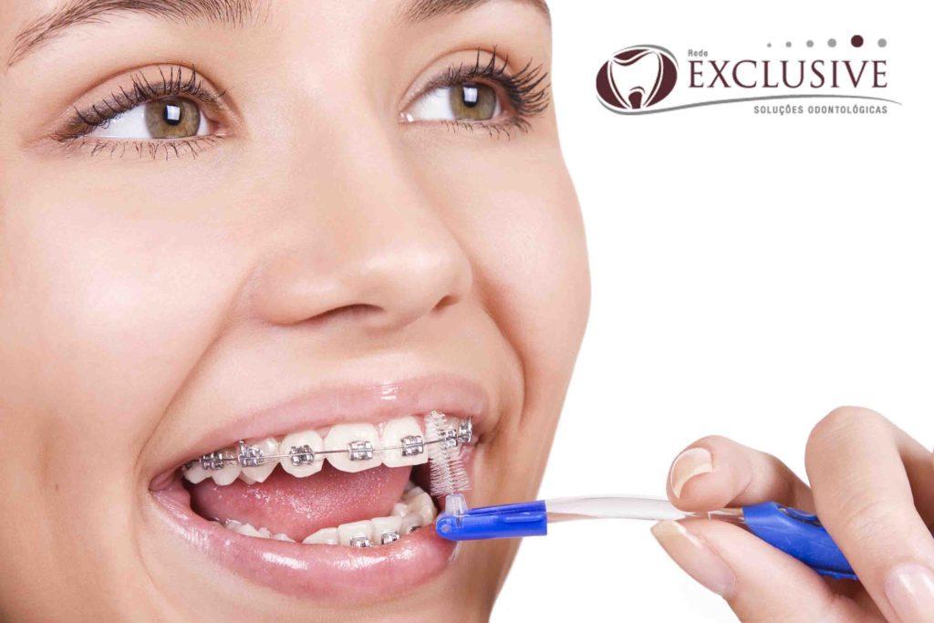 Como Escovar Os Dentes Usando Aparelho Fixo Clinica Odontologica